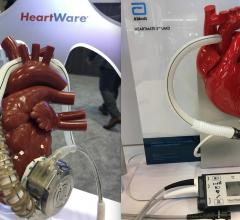 CMS coverage changes effective as of Dec. 2, 2020 will open up the use of LVADs to more Medicare patients, including use of the HeartWare and HeartMate ventricular assist devices.