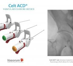 Vasorum Launches Celt ACD Second-Generation Vascular Closure Device in the U.S.