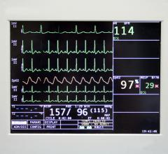 AI Could Use EKG Data to Measure Patient's Overall Health Status