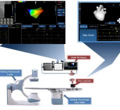 APN Health, Navik 3D cardiac mapping system, FDA clearance