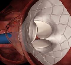 Tendyne Mitral valve