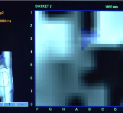 An screen shot of the Abbott Focal Impulse and Rotor Modulated (FIRM)-guided ablation system used to guide AF ablation procedures.