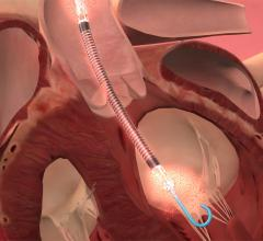 Pre-PCI Impella 2.5 Insertion Improves Survival in Left Main Coronary Artery Heart Attacks