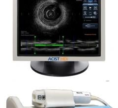 Acist, high-definition intravascular ultrasound system, HD-IVUS