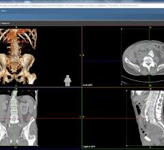 Agfa Healthcare, Enterprise Imaging, KLAS report 2015, Xero universal viewer, VNA