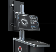 Avinger, Lightbox L250 imaging console, upgrade, Lumivascular platform, OCT, optical coherence tomography
