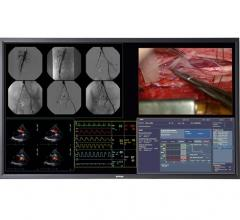 Barco Flat Panel Display MDSC-8258  Hybrid OR RSNA 2014