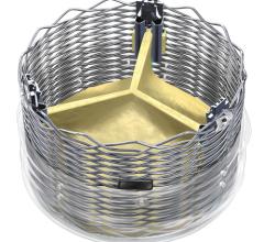 Boston Scientific Lotus TAVR valve, Lotus transcatheter aortic valve