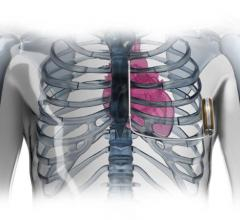 PRAETORIAN trial, first U.S. patients, ICD, subcutaneous, S-ICD, defibrillators