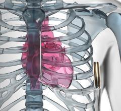 S-ICD, subcutaneous implantable cardioverter defibrillator, MRI safe ICD, Emblem