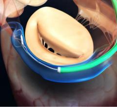Carillon mitral contour system, Cardiac Dimensions, functional mitral regurgitation, FMR, University Hospital Liepzig study