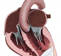CardioKinetix, Parachute device, heart failure, PARACHUTE IV trial, half enrollment