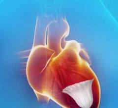 CardioKinetix, Parachute, PARACHUTE III, heart failure, clinical trial