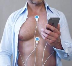 CardioSecur mobile ECG, 22-lead, 360 degree view of the heart, CardioSecur Pro