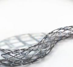 CeloNova BioSciences, Cobra PzF coronary stent system, second randomized trial, COBRA-REDUCE