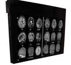 Flat Panel Displays, RSNA 2014, MRI Systems, DBI24-MRSafe