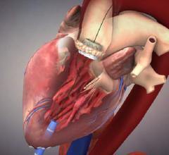 Edwards, Sapien 3, FDA approval, transcatheter heart valve