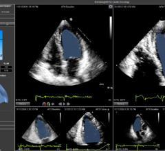 Epsilon Imaging, EchoInsight, ASE 2015, cardiac ultrasound image analysis