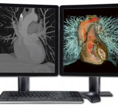 Fovia Visual Medica Advanced Visualization