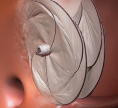 Gore cardioform Septal occluder in trials for PFO closure, PFO occlusion.