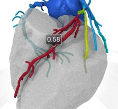 Philips is partnering with HeartFlow to co-develop new FFR-CT and FFR-angiography imaging technologies.