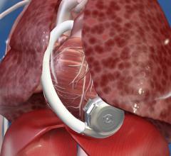 HeartWare, ventricular assist device, HeartWare VAD, recall, update