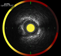 Infraredx, LRP Study, TVC Imaging System, Lipid-Rich Plaques, 1,000 patients