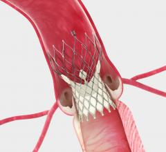 Medtronic CoreValve, real-world clinical outcomes, STS/ACC TVT Registry, TCT 2015