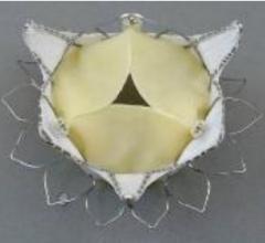 Tiara transcatheter mitral valve