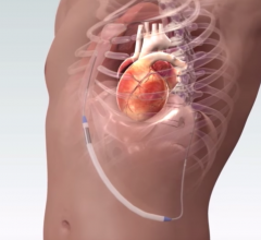 NewPace ISSD string subcutaneous ICD system
