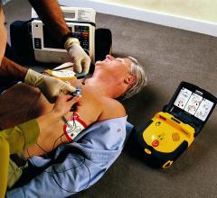 cardiac arrest, survival rates, high-rise buildings, Canada, AEDs