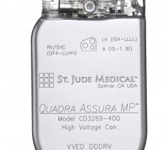 St. Jude Medical, SJM, MultiPoint Pacing, CRT, cardiac resynchronization therapy, U.S. launch