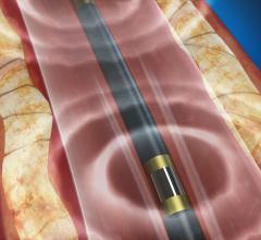 Shockwave medical, lithoplasty