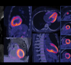 Nuclear myocardial perfusion scan performed on a Biograph Vision positron emission tomography/computed tomography (PET-CT) system from Siemens Healthineers. The image shows good clarity with delineation of the left ventricular edge and papillary muscles without cardiac gating.
