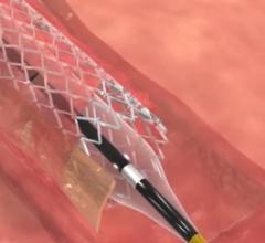 Stentys, commercialization, BTK stent, below-the-knee arteries