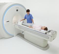 Toshiba Showcases Vantage Galan 3T MRI at ISMRM 2017