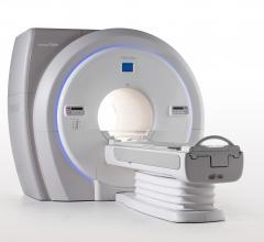 Toshiba Showcases MRI Workflow Enhancements at RSNA 2017