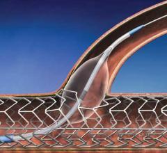 TriReme Medical Inc. Century Medical Inc. Shonin Approval Glider PTCA catheter