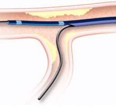 Vascular solutions, twin pass catheter, recall