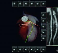 Vital Images Highlights Vitrea Advanced Visualization Version 7 at SCCT 2017