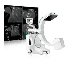 Ziehm Imaging, Vision RFD 3-D, Solo Portable, mobile C-arm