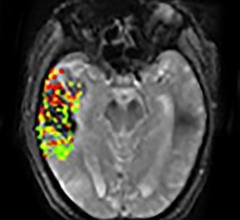 DEFUSE-2 study, MRI, brain bleeding risk, post-stroke treatment, NIH