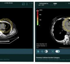 Zebra Medical Vision now offers artificial intelligence (A) medical imaging analytics for its cardiac solution HealthCCSng, which enables the quantification of the coronary artery calcium (CAC) on CT scans as an incidental finding.Zebra gained FDA clearance for the product in September 2021.