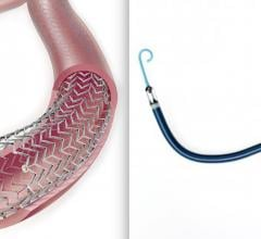 Two devices where safety is being called into question based on clinical data that is being questioned. The Cook Zilver PTX paclitaxel-eluting peripheral stent is among the devices included in a study questioning long-term safety of paclitaxel. The Abiomed Impella RP had higher than expected mortality in its post-approval study, possibly due to poor patient selection and implanting the device too late to aid the patient.