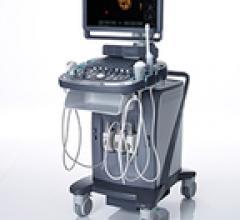Siemens, Acuson X600, RSNA 2014