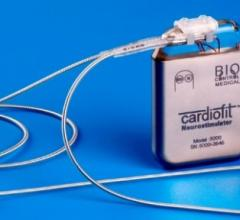 BioControl Medical CardioFit INOVATE-HF Clinical Trial