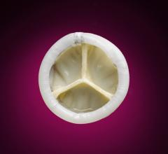 Direct Flow Medical, Transcatheter Aortic Valve System, DISCOVER, EuroPCR