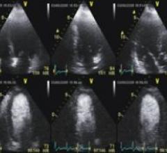 Lantheus Medical Imagings Definity perflutren lipid microsphere ultrasound contrast agent