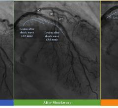 Serial coronary angiograms of the representative case treated with shockwave intravascular lithotripsy.