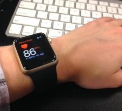 Apple Watch used for tracking patient arrhythmias using an artificial intelligence-based algorithm